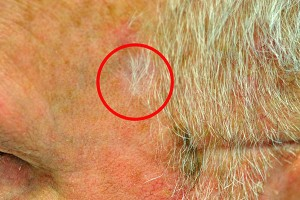 After Radiosurgery South Weymouth MA Skin Cancer Treatment