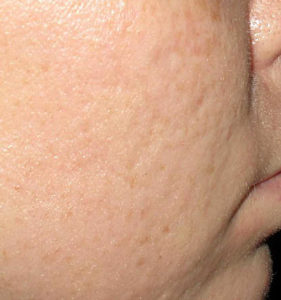 Greater Boston Microneedling procedures